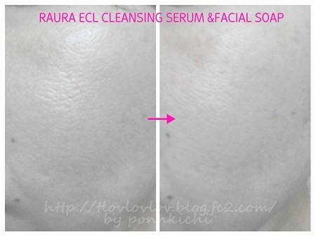 RAURA(ラウラ) クレンジング、洗顔石鹸セット1ヶ月トライアルセット (5)