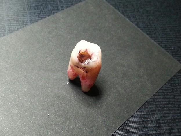 上顎第2大臼歯カリエス(虫歯)アクセサリー