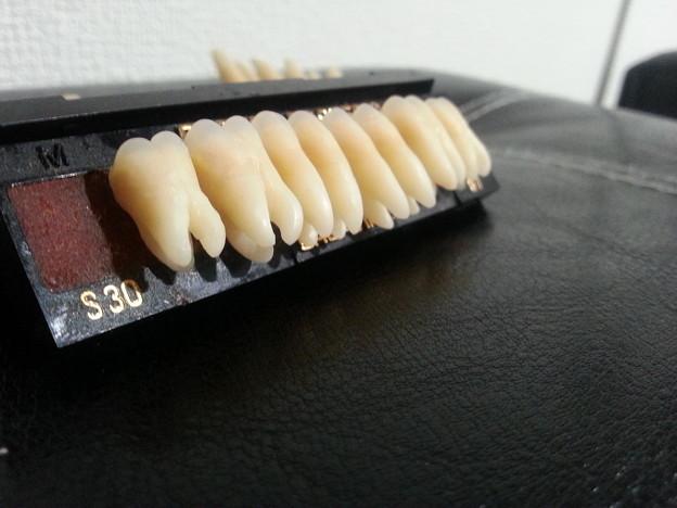 下顎臼歯6本